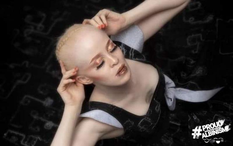 Proud Albinism